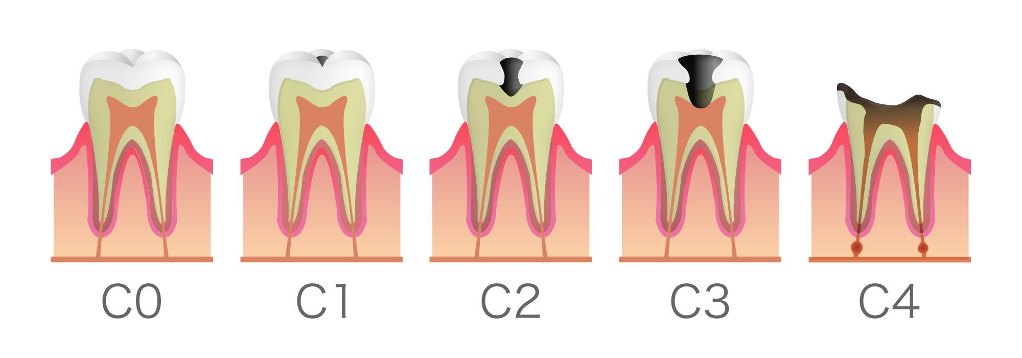 健康な歯の断面図