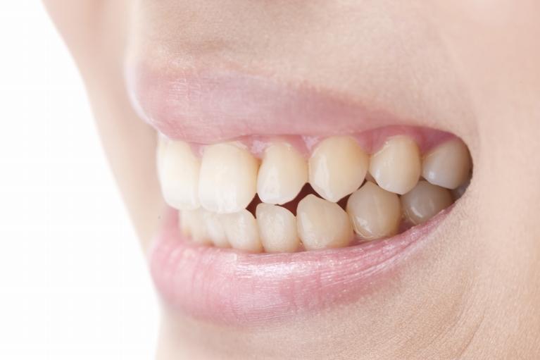 歯を失った方へ